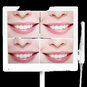 scs1 removebg preview 300x300 - مانیتور و دوربین داخل دهانی SCS