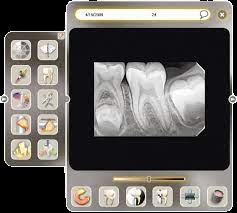 sophix3 removebg preview - تجهیزات پزشکی آریا پرتو کالا